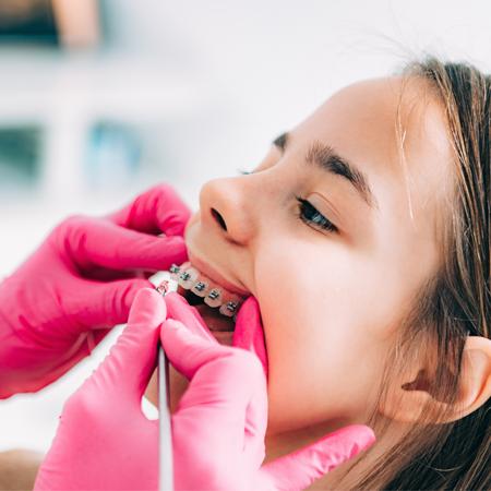 Orthodontic in Camelback