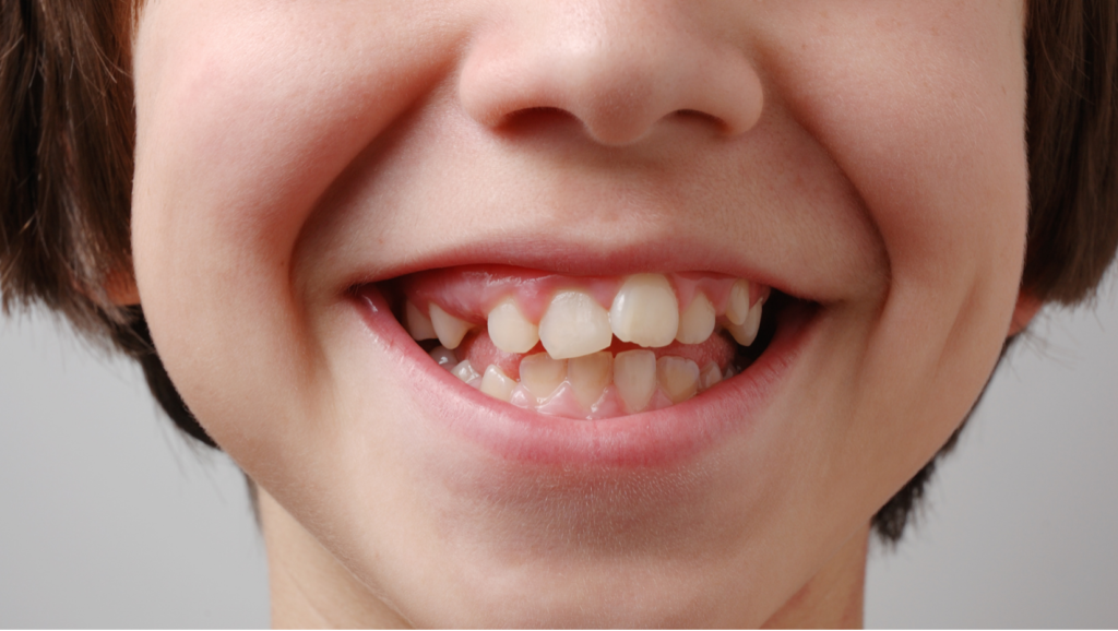 pediatric orthodontist in Camelback